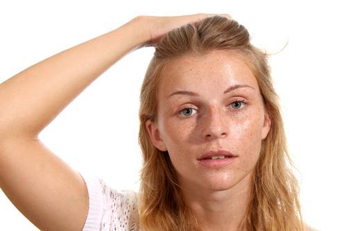 A química pode prejudicar o couro cabeludo | <i>Crédito: Shutterstock