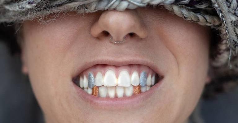 Os esmaltes para dentes são a novidade no mercado de beleza
