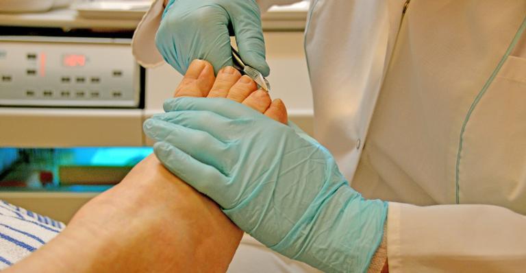 Cuidados simples podem impedir que problemas nos pés e unhas se agravem durante a período de isolamento social