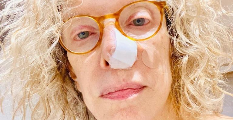 Conheça os sintomas, tratamento e prevenção desse tipo de câncer de pele