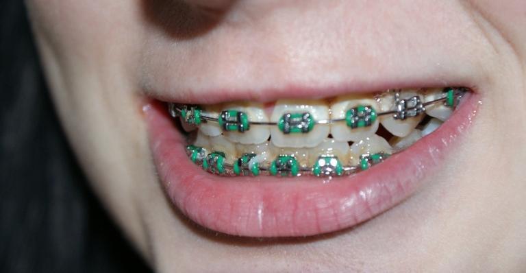 Alguns cuidados são necessários para uma boa saúde bucal
